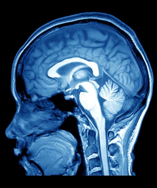 risonanza cerebrale